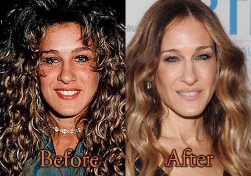 Sarah Jessica Parker Plastic Surgery