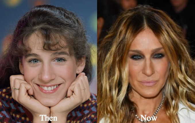 Sarah jessica parker nose job before and after