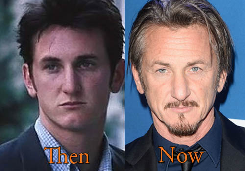 Sean Penn Plastic Surgery Picture