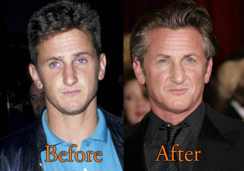 Sean Penn Plastic Surgery