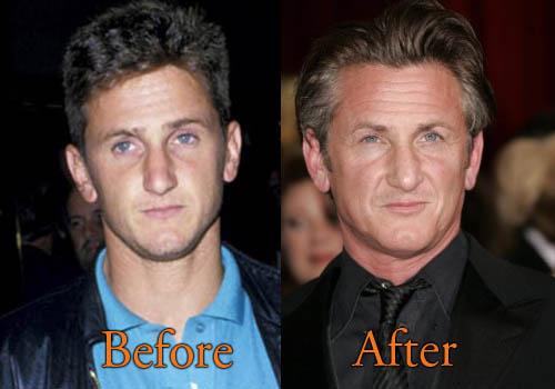 Sean Penn Plastic Surgery