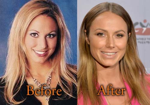 Stacy Keibler Plastic Surgery