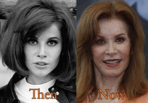 Stephanie Powers Facelift