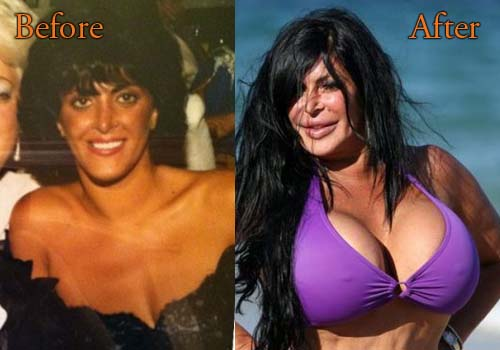Big Ang Plastic Surgery Picture