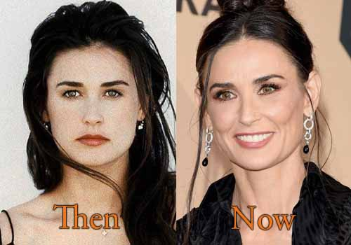 Demi Moore Plastic Surgery, Before and After Botox Pictures