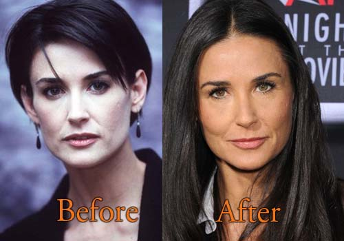 Demi Moore Plastic Surgery Before And After Botox Pictures