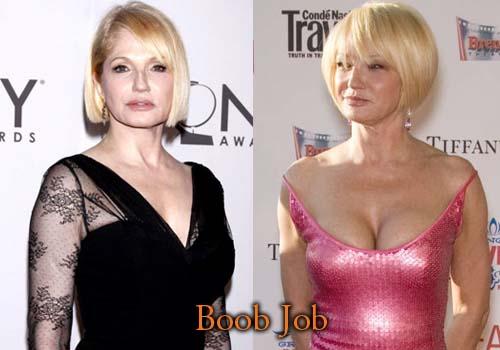Ellen Barkin Plastic Surgery Boob Job