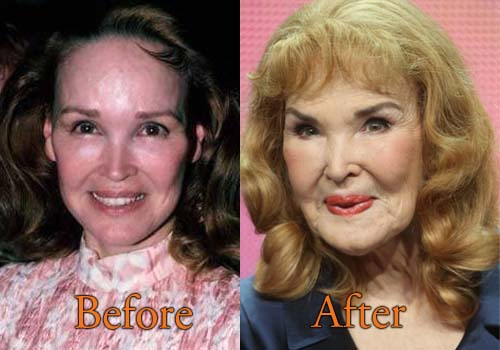 Kathryn Crosby Plastic Surgery Picture
