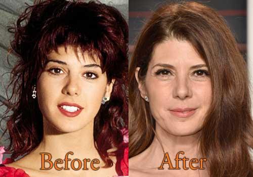 Marisa Tomei Plastic Surgery