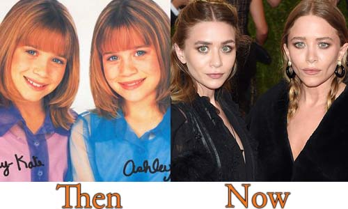 Mary-Kate Ashley Olsen Plastic Surgery