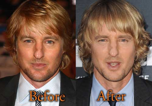 Owen Wilson Plastic Surgery