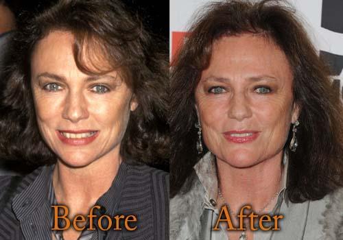 Jacqueline Bisset Plastic Surgery Botox