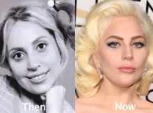 Lady-Gaga-Plastic-Surgery-Before-and-After-Photos