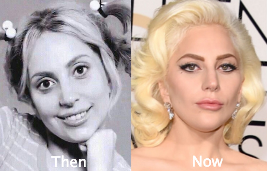 Lady Gaga Plastic Surgery Before And After Nose Job Boob