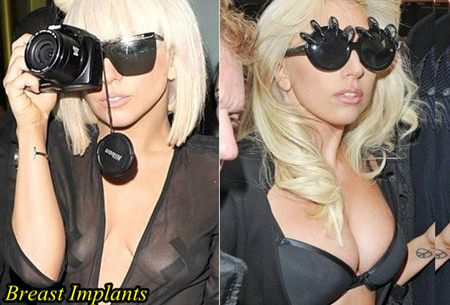 Lady-Gaga-Plastic-surgery-Breast-Implants