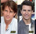 Tom-Cruise-Plastic-Surgery