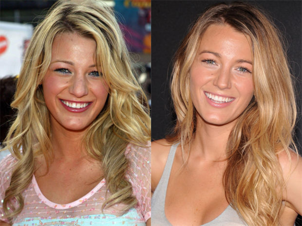 Blake Lively Before And After Plastic Surgery Top