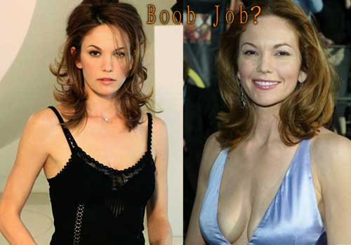 Diane Lane Breast Implants