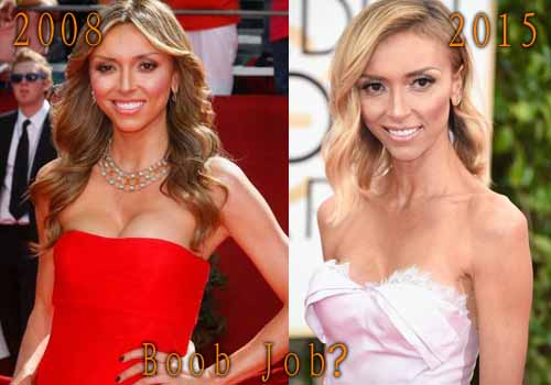 Giuliana Rancic Plastic Surgery Boob Job