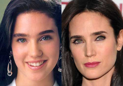 Jennifer Connelly Plastic Surgery