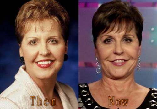 Joyce Meyer lip filler, facelift