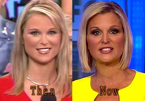 Juliet Huddy Plastic Surgery