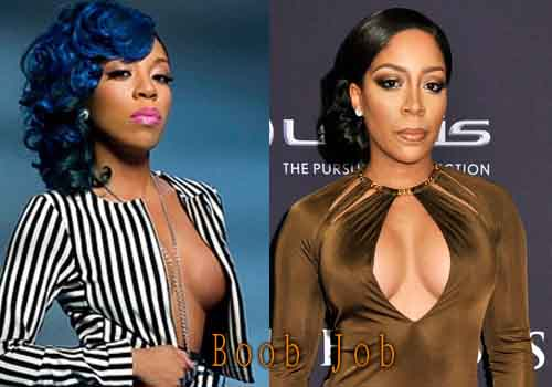 K Michelle Plastic Surgery Boob Job