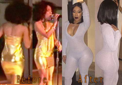 K Michelle Plastic Surgery Butt Implants