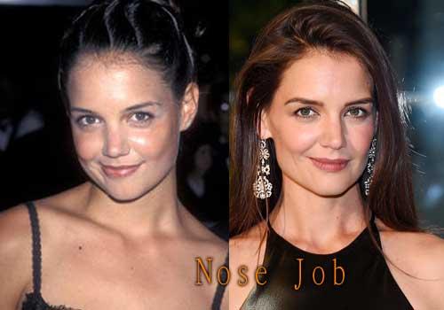 Katie Holmes Plastic Surgery Nose Job
