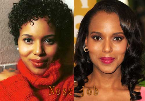 Kerry Washington Nose Job