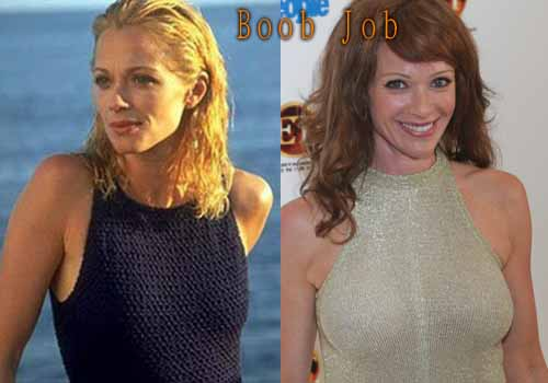 Lauren Holly Boob Job