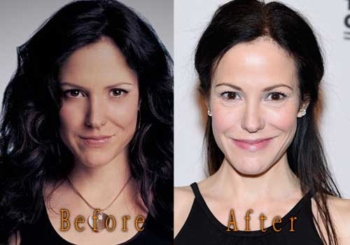 Mary-Louise Parker plastic surgery