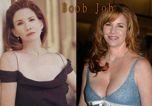 Melissa Gilbert Boobs Job