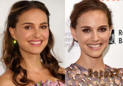 Natalie Portman nose job, botox