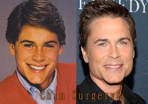 Rob Lowe Facelift