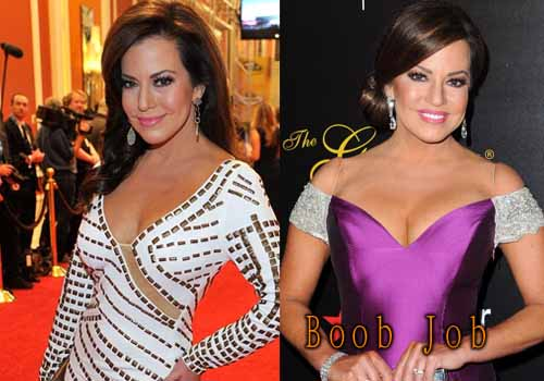 Robin Meade Breast Implants