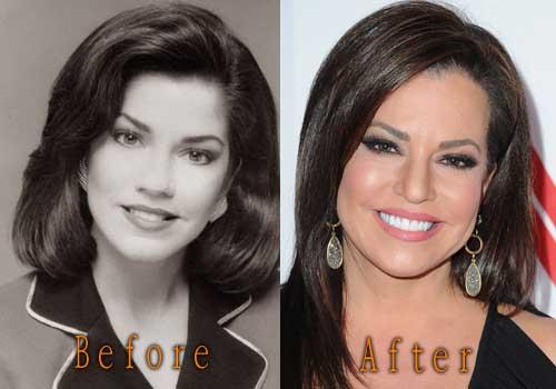 Robin Meade Plastic Surgery