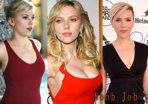 Scarlett Johansson Boobs Job