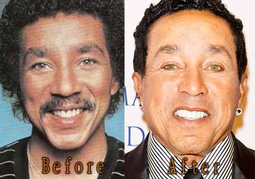Smokey Robinson Eyelid Surgery