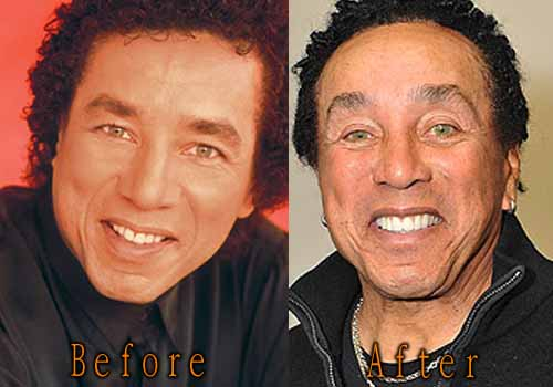 Smokey Robinson Plastic Surgery