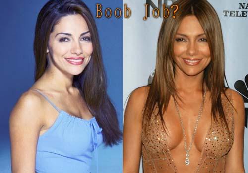 Vanessa Marcil Plastic Surgery Boob Job