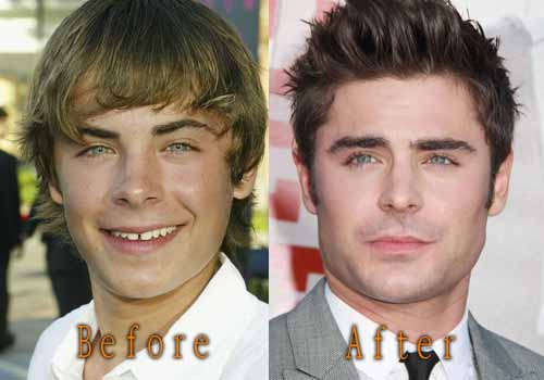Zac Efron Plastic Surgery
