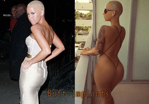 Amber Rose Butt Implants