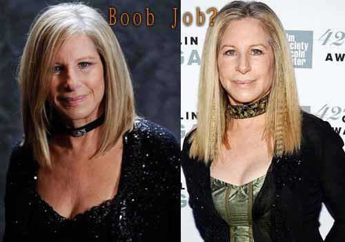 Barbra Streisand Boob Job