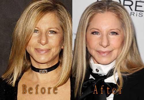 Barbra Streisand Plastic Surgery Topcelebritysurgery