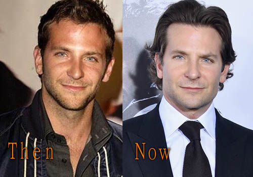 Bradley Cooper Plastic Surgery Picture