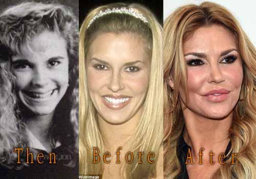 Brandi Glanville Plastic Surgery