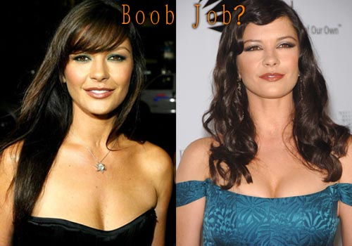 Catherine Zeta-Jones Breast Implant