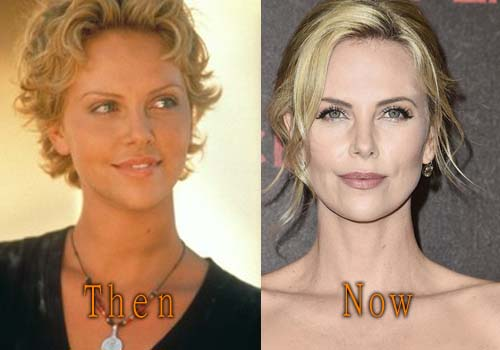 Charlize Theron Plastic Surgery Picture