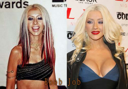 Christina Aguilera Plastic Surgery Boob Job